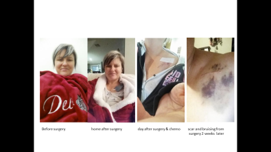 1. before surgery 2. home after surgery 3. home after chemo next day 4. scar and bruising of surgery post 2 weeks